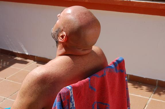 Bald-man-sitting-in-the-sun